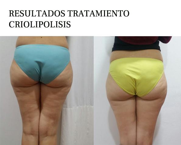 Resultados Criolipólisis
